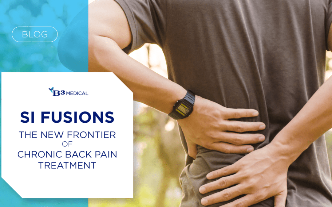 SI Fusions: The New Frontier of Chronic Back Pain Treatment